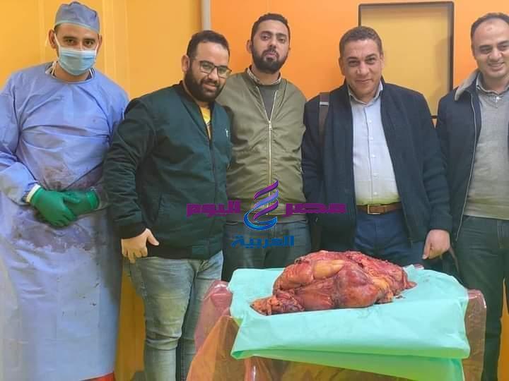 إستئصال ورم خبيث يزن 30 كجم فى عملية جراحية استغرقت 6 ساعات بمعهد جنوب مصر للاورام