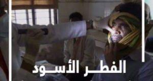 الصحه تفصح عن العدد الحقيقي للإصابة بالفطر الأسود بمصر