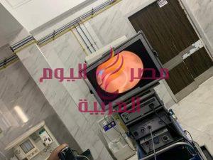 استئصال تضخم حميد بالبروستاتا بمنظار البلازما لأول مرة بمستشفى دكرنس العام   استئصال