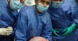 استئصال ورم يزن ١٥ كجم من فتاة فى العشرين من عمرها بمستشفي سوهاج الجامعي   ورم
